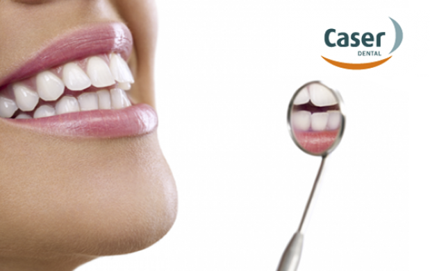 Caser Dental: estudio 3D+limpieza bucal